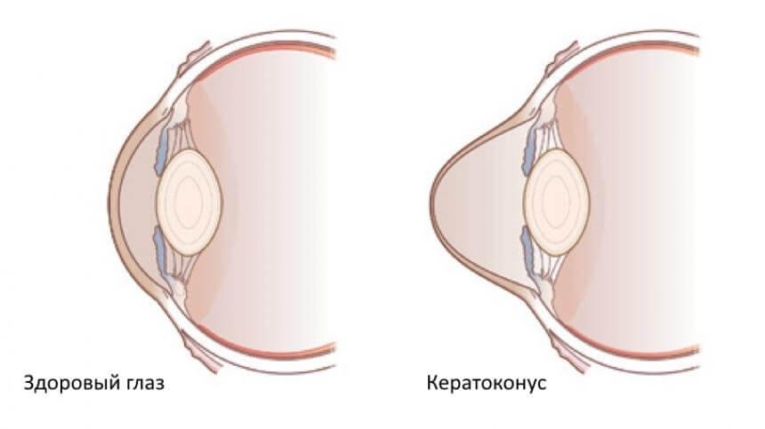 Как диагностировать кератоконус